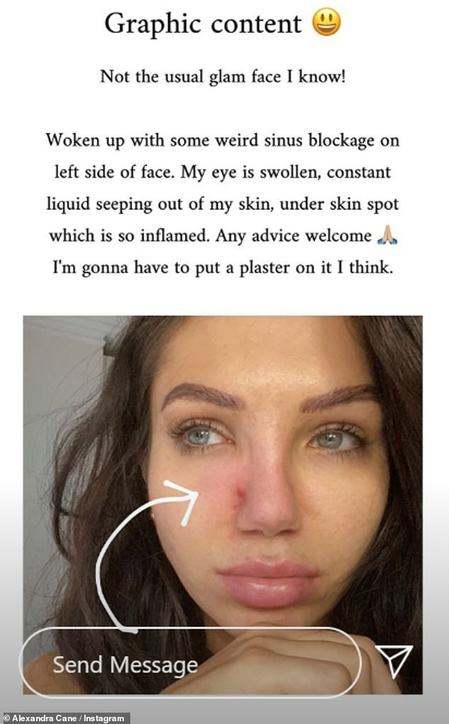 Open and honest:Alexandra opened up about her 'crippling' battle with impetigo on Wednesday as she revealed her inflamed skin in a make-up free Instagram post