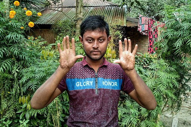 Apu Sarker, 22, (pictured) and the men in his family share the condition which leaves the pads of their fingers smooth and devoid of the unique ridges that make up fingerprints, the BBC 's Mir Sabbir reported