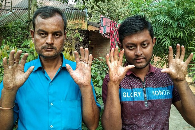 Sarker (right) and his father Amal (left) hold their hands up, showing the lack of fingerprints which has caused them many problems when applying for official documents