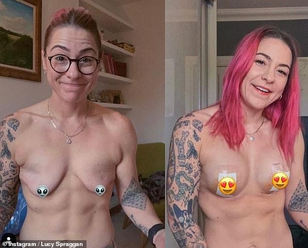 What a change: The singer, 29, has been very candid about how her new 34D assets have made her feel 'absolutely incredible' and shared regular updates (left before and right after surgery)