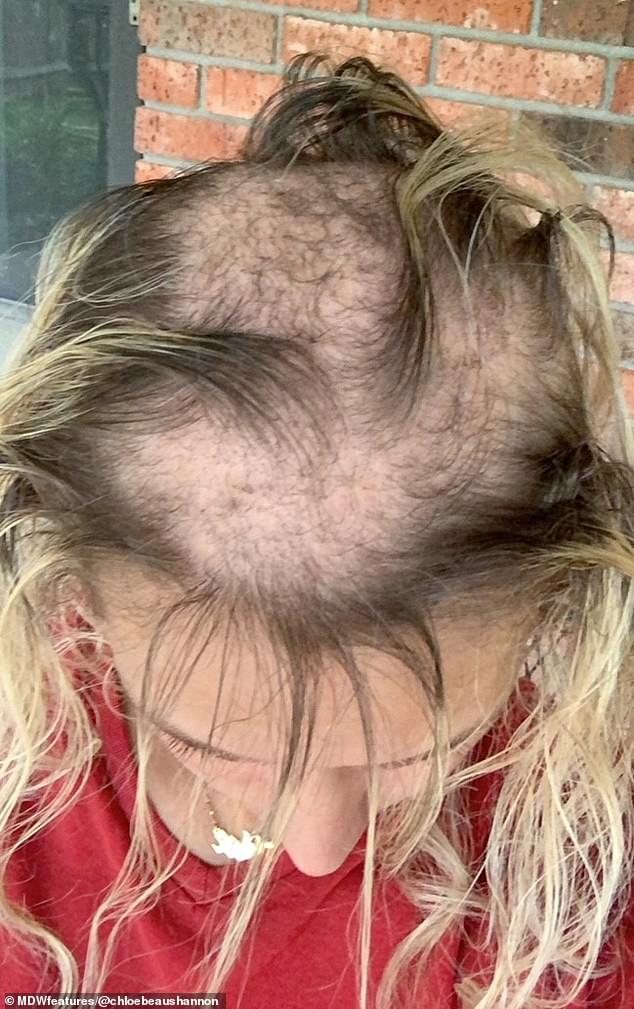 Chloe said she received 'nothing but love and positvity' when she began sharing her experience. Pictured: Chloe's bald patches caused by alopecia