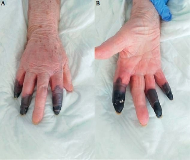 Gruesome pictures published in a medical journal showed how the digits on the hands of an unidentified 86-year-old woman turned black after she contracted coronavirus in March