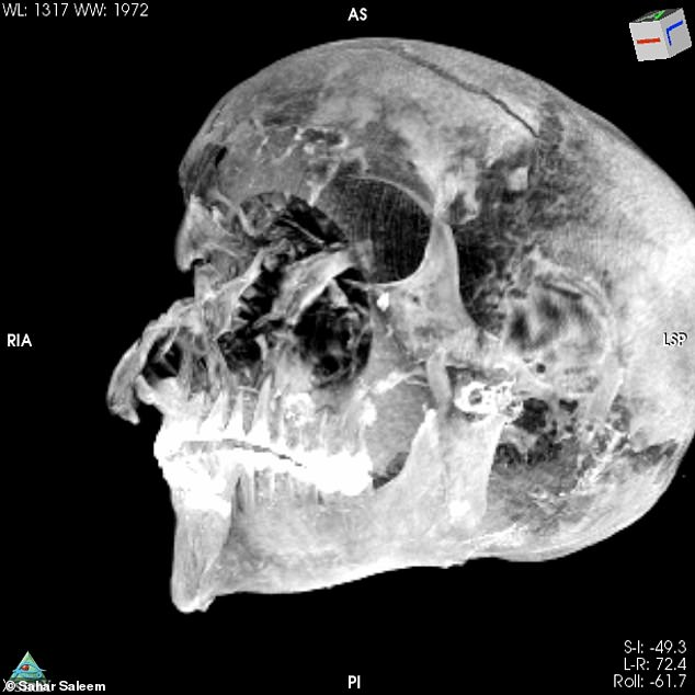 Experts from Egypt CT-scanned the mummy of pharaoh Seqenenre Tao — known as 'the Brave' — and revealed new details about the head injuries (pictured) that led to his death