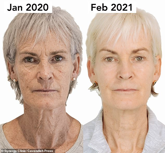 Game, set and match: Judy Murray, 61, used a non-surgical facelift treatment for this transformation after being teased by her sons