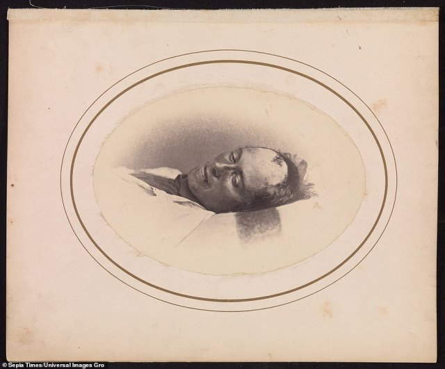 Private Dennis Sullivan., of Company E, Second Virginia Cavalry, pictured in April 1865 by Dr Bontecou on an Albumen silver print from glass negative. The twenty-one-year-old Confederate Private Sullivan died at Harewood Hospital on April 27. 1865, of a head wound.