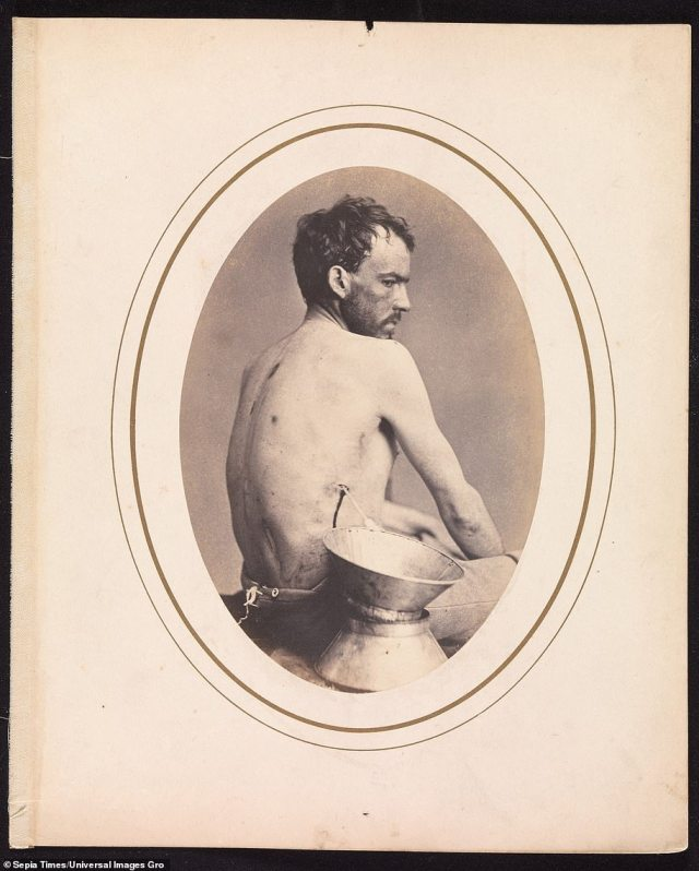 Corporal Israel Spotts, of Company G, 200th Pennsylvania Volunteers, pictured in May 1865 by Dr Bontecou. Dr. Bontecou's patient history for Corporal Spotts explains that nearing the end of his treatment. the wounded soldier deserted from the hospital