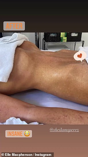 Results:Posting a before and after shot of her bare torso, Elle tagged Sheila Perez, the founder of the method that saw her stomach shrink in size immediately