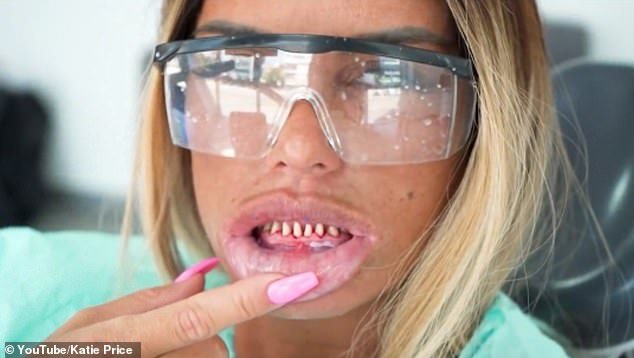 Unrecognisable: Katie Price fell victim to the 'vampire teeth' procedure when she travelled to Turkey for veneers in August last year