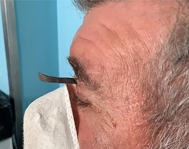 The un-named man got the nail wedged above his eye while he was mowing the lawn in Verona, northern Italy, during the first lockdown. He was rushed to hospital for treatment