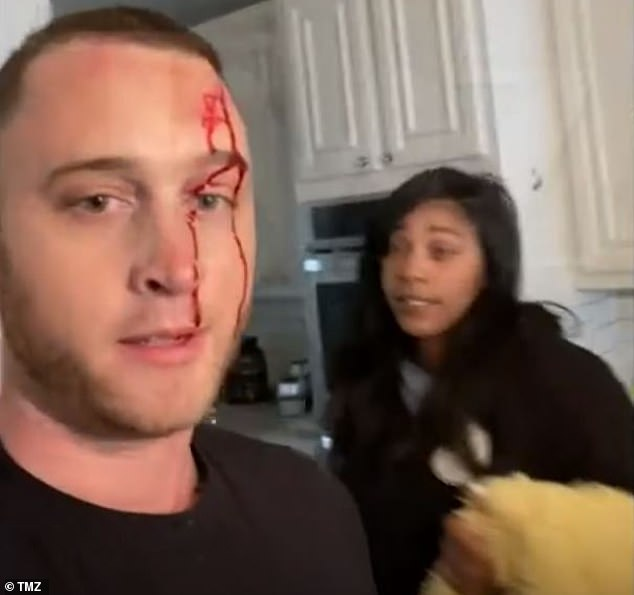 Chet Hanks (left) has accused his ex-girlfriend Kiana Parker (right) of carrying out a bloody attack on him with a knife in a newly surfaced video amid a messy legal battle after they split