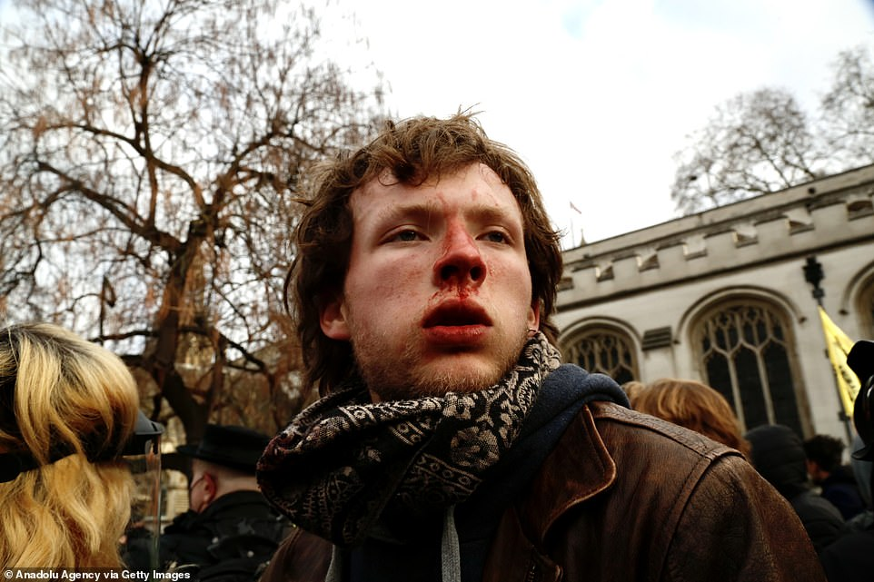A protestor appears injured as police intervene during the 'Kill the Bill' protest in central London, where demonstrators gathered at Hyde Park and marched towards Parliament Square