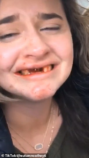 That's going to be one hell of a hangover! A 26-year-old woman knocked out her front teeth in a gruesome accident after getting drunk at bottomless brunch