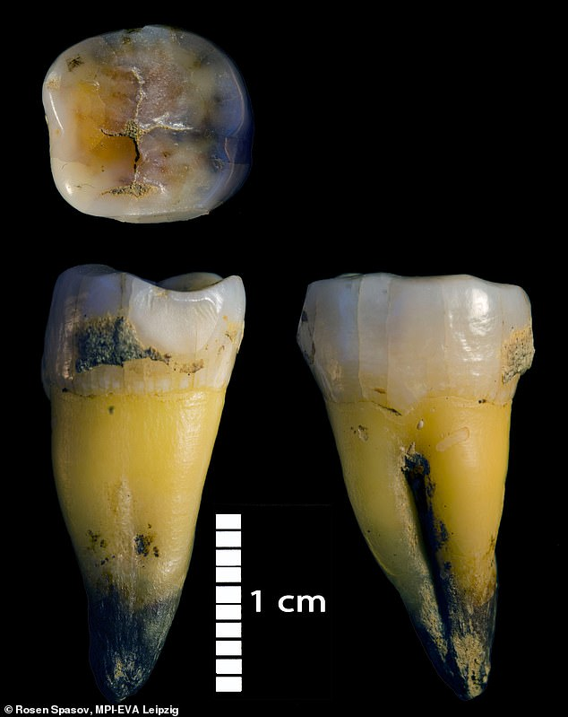 Pictured, the intact tooth of a person found in Bacho Kiro cave in Bulgaria.Genome-wide data from this individual indicates that he had a Neanderthal ancestor less than six generations before he lived