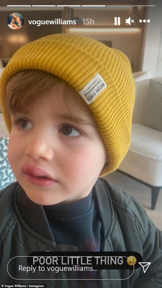 'Poor little thing': Vogue Williams recently revealed her son Theodore was left with a swollen lip after suffering a nasty fall at home