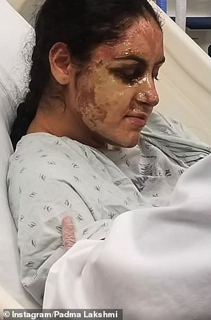 Nafia suffered severe burns (pictured) on her face outside her Almont, Long Island home in a March attack that her family believes was 'planned'