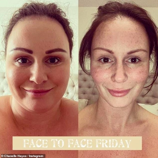 Wow:Chanelle showed off her dramatic face weight loss in shocking before and after snaps on Friday