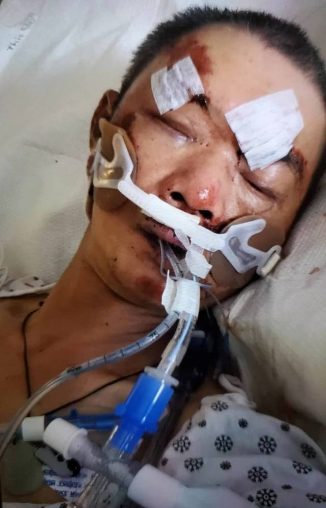 Police sources told the New York Post that Ma suffered a cerebral contusion and facial fractures - and a photo Chen provided the outlet shows him hooked up to medical gear in the hospital.