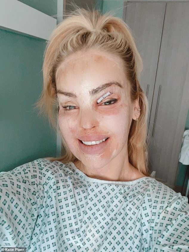 Brave:Katie survived a sulphuric acid attack organised by her ex-boyfriend in 2008, which caused significant damage to her face and left her blind in one eye