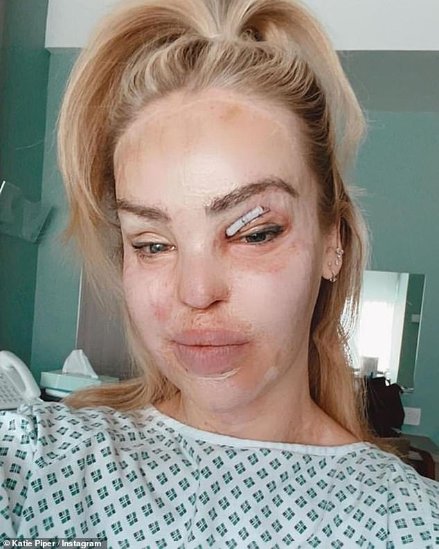 Surgery: Just last month, Katie underwent a successful operation for a skin graft over her right eye as part of her ongoing recovery following her 2008 acid attack