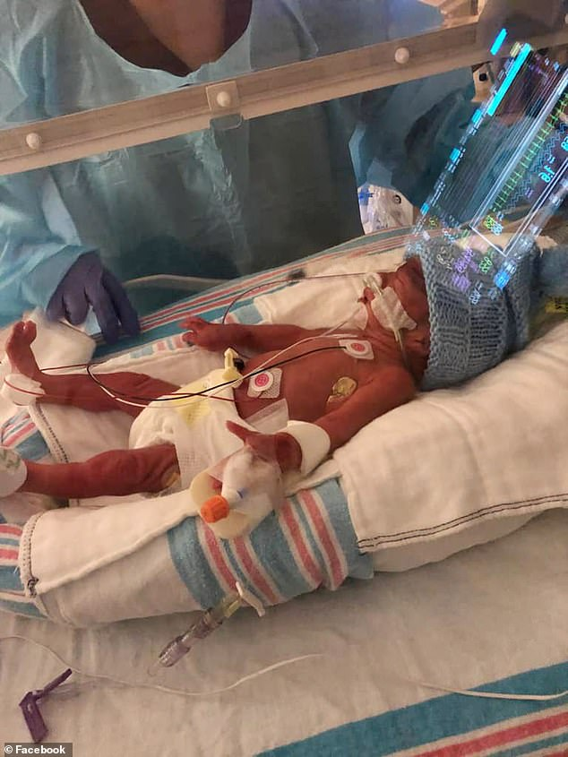 Baby Raymond is seen in hospital in Honolulu, in good health, but born extremely premature