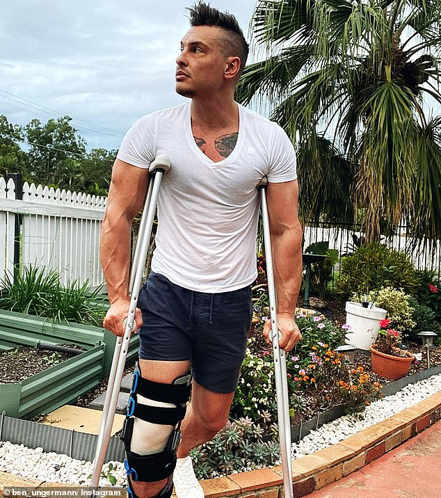 Ungermann has 97,000 followers on Instagram, where he continues to post videos and photos. He appeared on crutches in a post just days ago