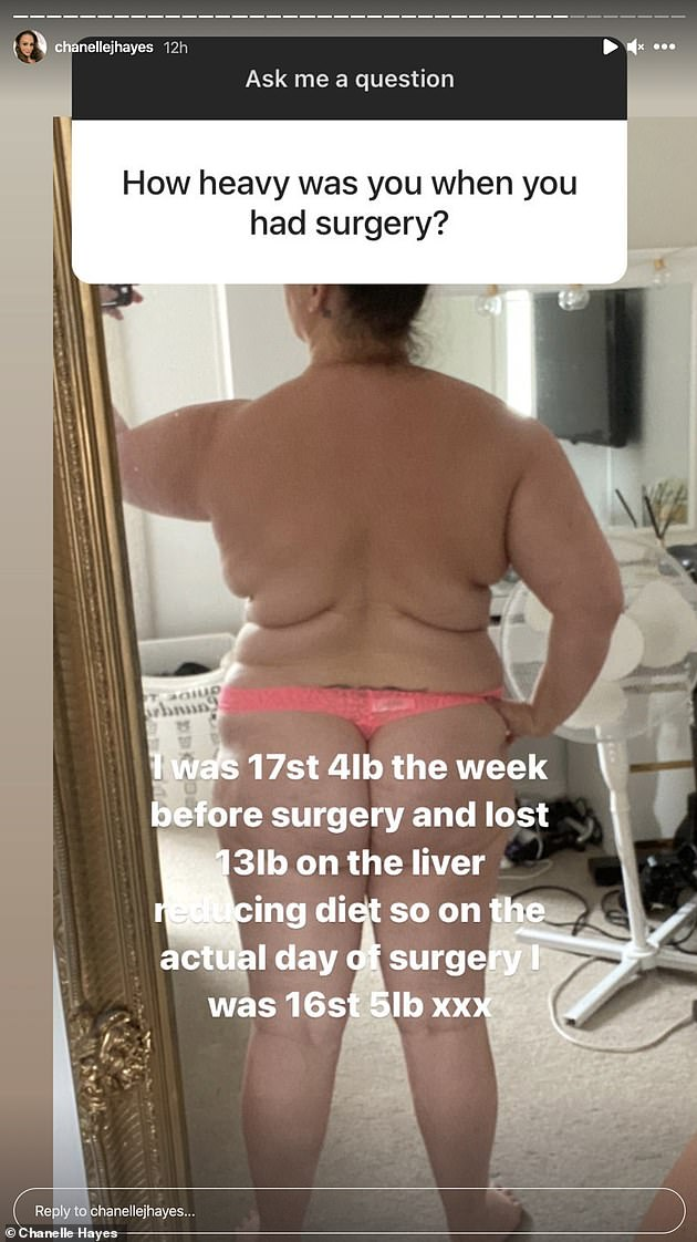 Before...It comes after earlier on Friday Chanelle shed further light on her gastric sleeve surgery and shared images from her stint in hospital and her pre-weight loss body