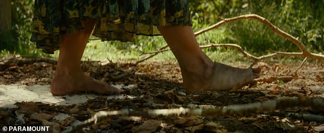 Keep Calm: Evelyn had one foot completely bandaged as she walked as gently as she could over parched leaves