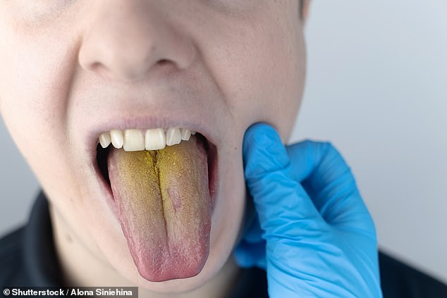 Yellow discolouration on the tongue is usually due to a build-up of dead skin cells on the papillae ¿ the tiny projections on the surface of the tongue that give it its characteristic rough texture