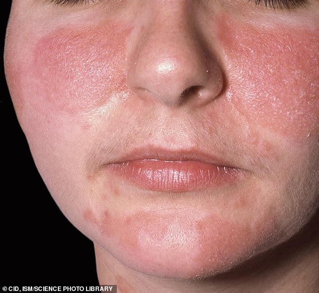 Inflamed and scaly skin on the face of a 30 year old woman with seborrheic dermatitis. This is an inflammatory disorder where the skin becomes flaky, itchy and red. It occurs especially in areas rich in oil-producing sebaceous glands, such as the scalp and round the nose