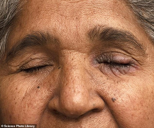 Contact dermatitis on a female patient's eyelid caused by eye drops used to treat glaucoma. Contact dermatitis is a type of eczema caused either by a toxic reaction to a particular substance or by an allergic reaction