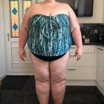 Woman, 33, sheds 16 STONE with the help of a gastric bypass and surgery to remove excess skin 💥👩💥