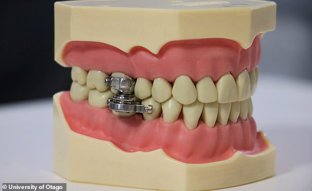 This is not a joke: DentalSlim Diet Control has been created as a way to curb obesity - by clamping the mouth shut