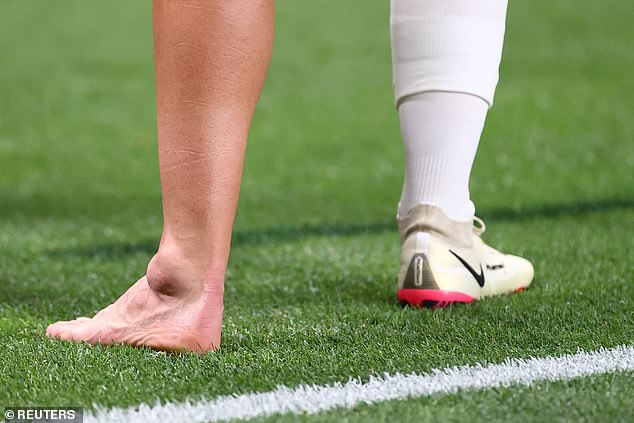 The Real Madrid star's ankle was stamped by Taher Mohamed before becoming very swollen
