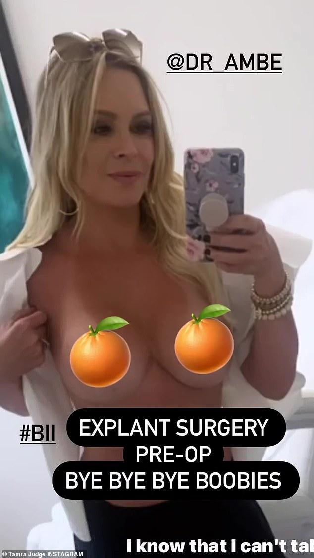 Tot ziens: Judge onthulde haar beslissing vorige week via Instagram Story, waar ze zei dat ze 'moe was van moe en ontstoken' te zijn voordat ze een topless foto deelde vanuit het kantoor van de dokter.