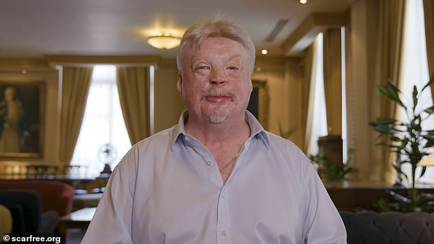 Simon Weston, a Welsh veteran of the British Army, has recovered from severe burns sustained during the Falklands War