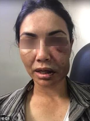 Marcia Angola was left beaten and bruised after the attack