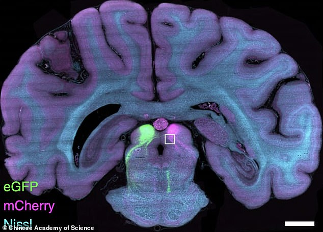 The team, including researchers from Zhejiang University, say that having such a detailed mapping of a primate brain will help in understand human diseases