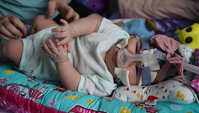 The hospital believes that she is the world's lightest baby to have survived a premature birth