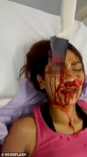 A woman in Brazil was left with a huge kitchen knife embedded in her eyebrow