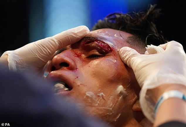 The cut on the Mexican's eye worsened and the fight at Emerald Headingley was called off