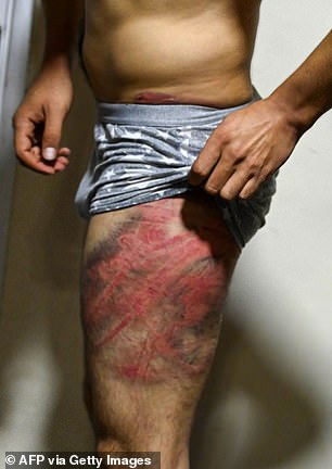 Journalist Neamat Naqdi was left with lash marks on his thighs after he was detained while covering protests in Kabul on Wednesday
