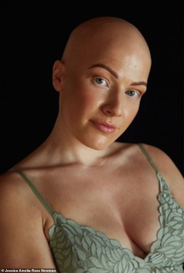 Jessica (pictured) said she felt an immense pressure to wear false lashes to 'fit in' and found losing her eyelashes more difficult than her hair