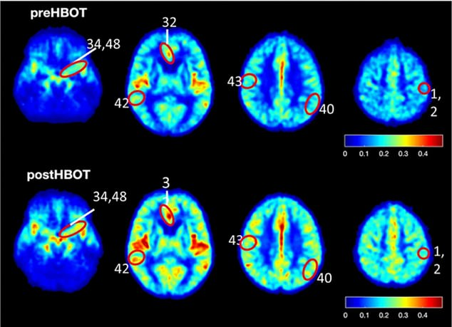 Researchers from Tel Aviv University found brain flow and cognitive function are improved after patients receive hyperbaric oxygen therapy. The picture shows brain scans in human volunteers before they were given HBOT (top row) and three months later, during they received around five sessions per week. Orange and red parts of the brain indicate increased blood flow. The red circles show some of the areas where blood flow increased after the treatment. The numbers indicate the parts of the brain where the blood flow was found to increase under theBrodmann scale, which divides the brain into 52 areas
