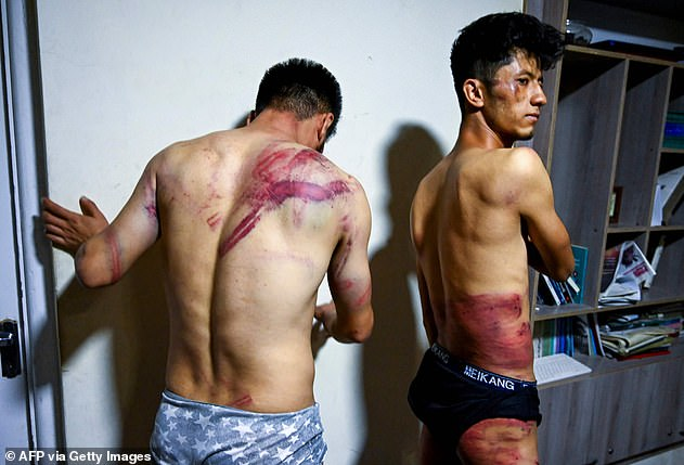 Harrowing images emerged of two journalists with angry welts and bruises after they were detained by Taliban fighters while covering protest
