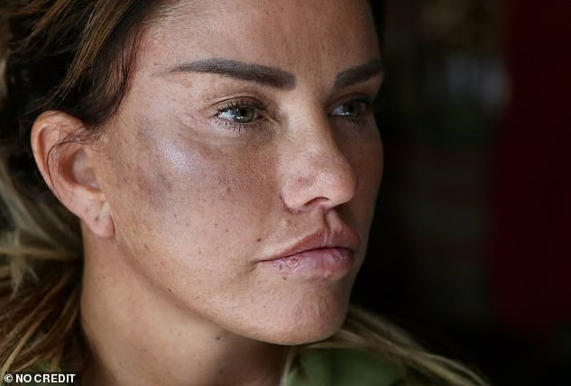 Upsetting:Katie said she was attacked as she watched TV - forcing her to flee in terror to her eldest son's nearby home. She was left with facial bruises following the incident
