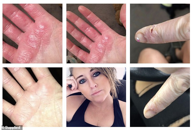 Health Worker Cherie Alexander, 39, has such severe eczema on her right hand that she could hardly work or shower at times, needing to wear gloves