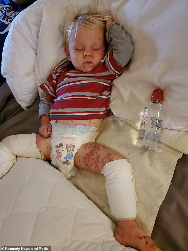 Savannah said, 'People said that he looked like he had leprosy because he was covered in them and his skin was rough and rough.  Boaz is pictured after being weaned off a cream used to treat mild eczema