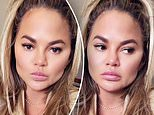 Chrissy Teigen admits she had fat removed from her face in candid chat about plastic surgery