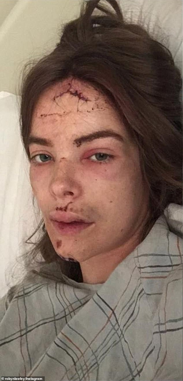 She's a survivor: Robyn has previously spoken about embracing the scars on her body after falling down a 2.1-metre staircase while suffering a lupus-related seizure, back in 2018