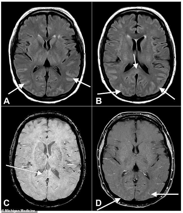Scientists are still working to understand how COVID causes delirium, but it may be linked to inflammation in the brain - shown here in a brain scan of patient D